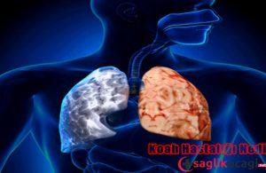 Koah Hastalığı Nedir? Belirtileri ve Tedavisi