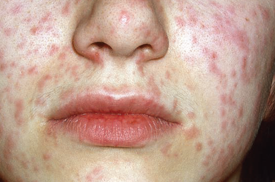 Kızamık Hastalığı Nedir, Nasıl Bulaşır?