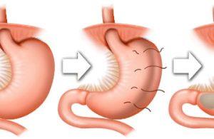 Mide Küçültme Ameliyatı Nedir?