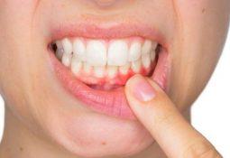 Diş Eti Tedavisi Ne Kadar Sürer?